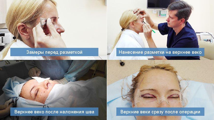 этапы блефаропластики в москве.