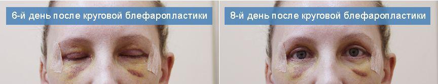 6-й и 8-й день после круговой блефаропластики в москве.
