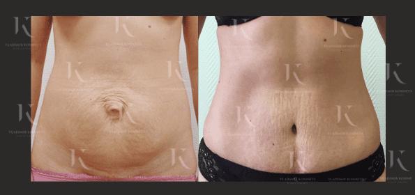 abdominoplastika10-foto-doiposle-doktorkosinets