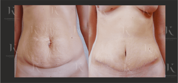 abdominoplastika6-foto-doiposle-doktorkosinets