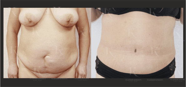 abdominoplastika7-foto-doiposle-doktorkosinets