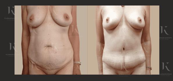 abdominoplastika8-foto-doiposle-doktorkosinets