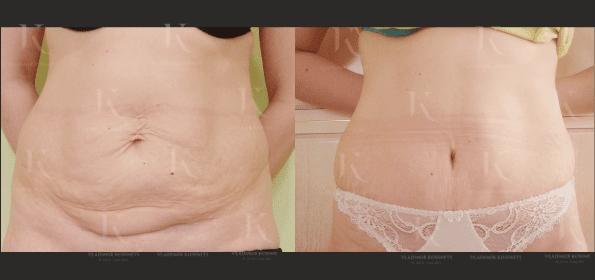 abdominoplastika9-foto-doiposle-doktorkosinets
