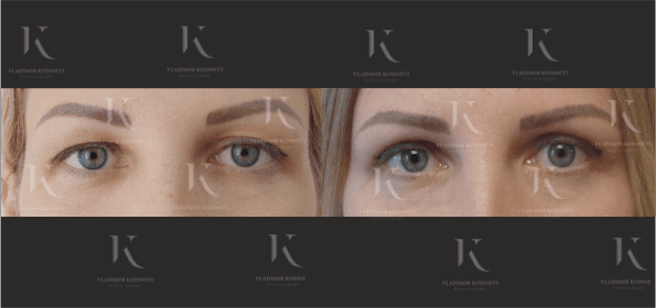 blefaroplastika1-foto-doiposle-doktorkosinets