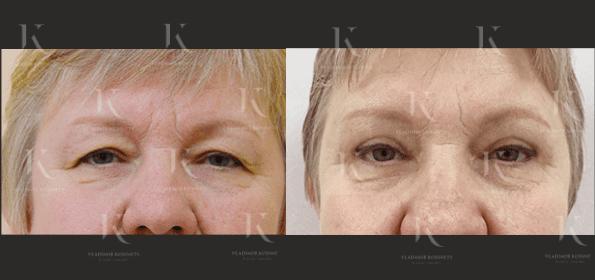 blefaroplastika11-foto-doiposle-doktorkosinets