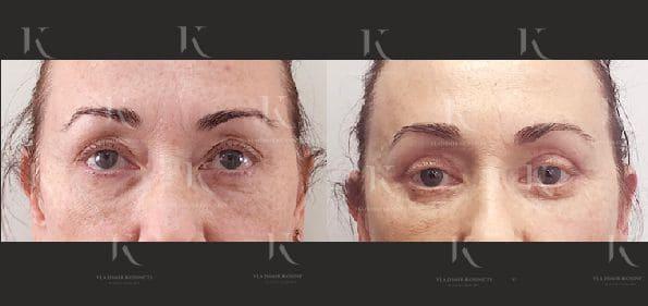 blefaroplastika22-foto-doiposle-doktorkosinets