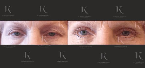 blefaroplastika3-foto-doiposle-doktorkosinets