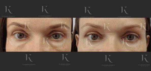 blefaroplastika4-foto-doiposle-doktorkosinets