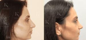 rinoplastika1-foto-doiposle-doktorkosinets
