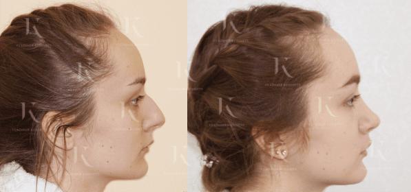 rinoplastika10-foto-doiposle-doktorkosinets