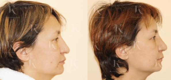 rinoplastika2-foto-doiposle-doktorkosinets (1)