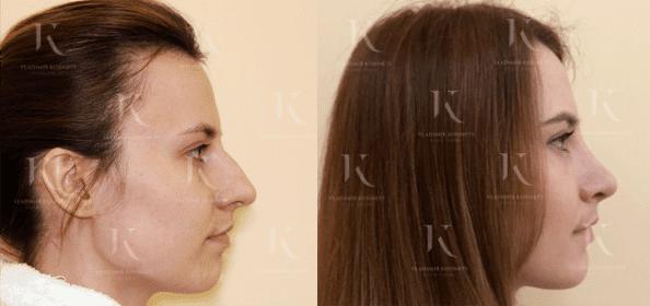 rinoplastika8-foto-doiposle-doktorkosinets