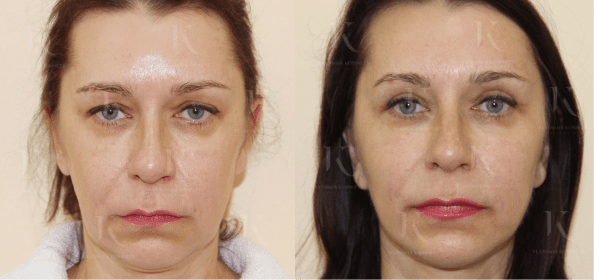 facelifting10-foto-doiposle-doktorkosinets.