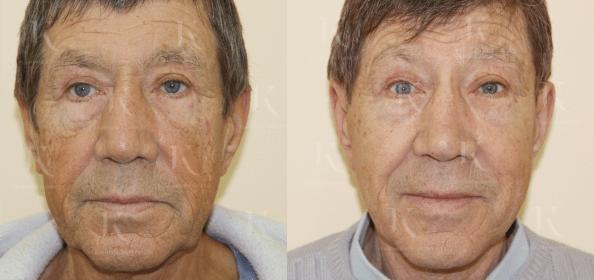 facelifting3-foto-doiposle-doktorkosinets.