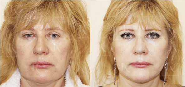 facelifting7-foto-doiposle-doktorkosinets.