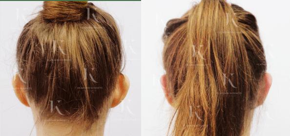 otoplastika-fotodoiposle1-doktorkosinets
