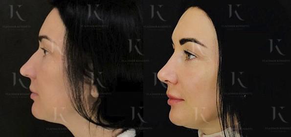 ринопластика нос