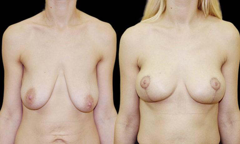 якорная мастопексия без имплантов