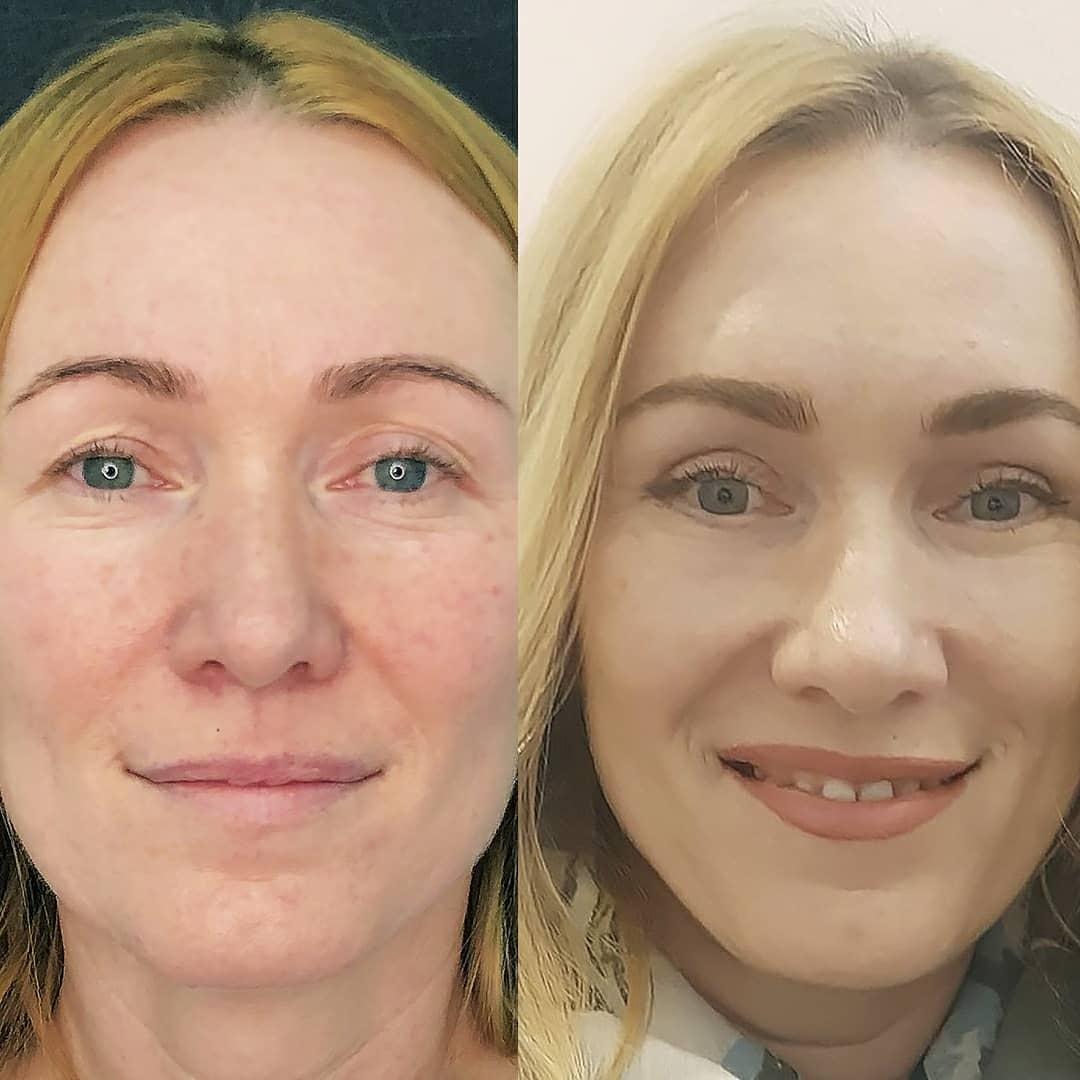 круговая блефаропластика фото до и после