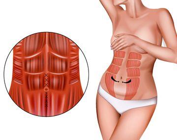 Почему развивается диастаз мышц живота?