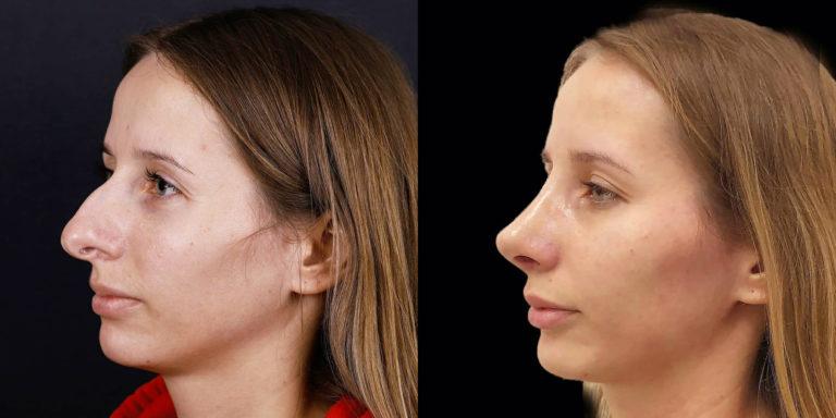 пластика горбинки носа