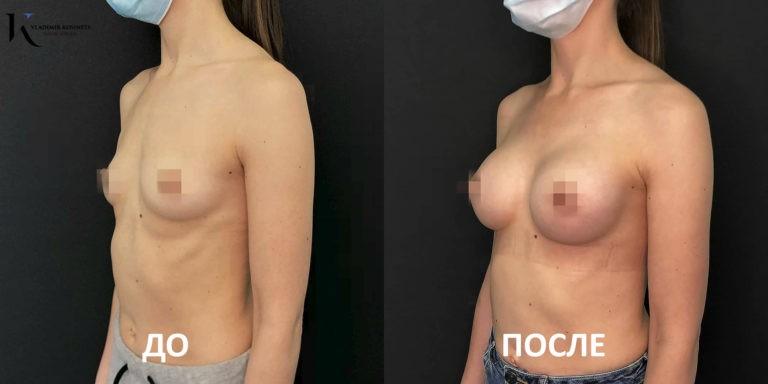 где сделать пластику груди