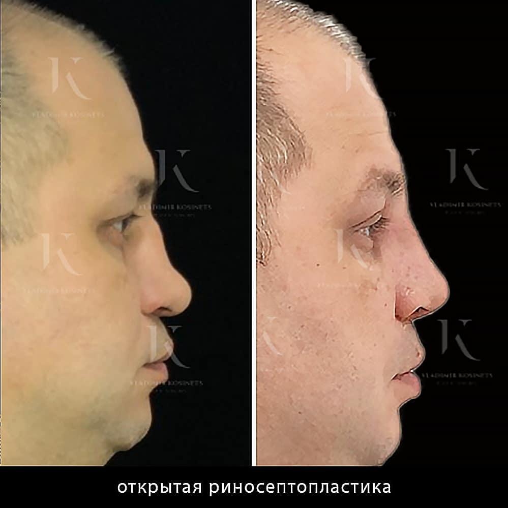 пластические операции носа у мужчин
