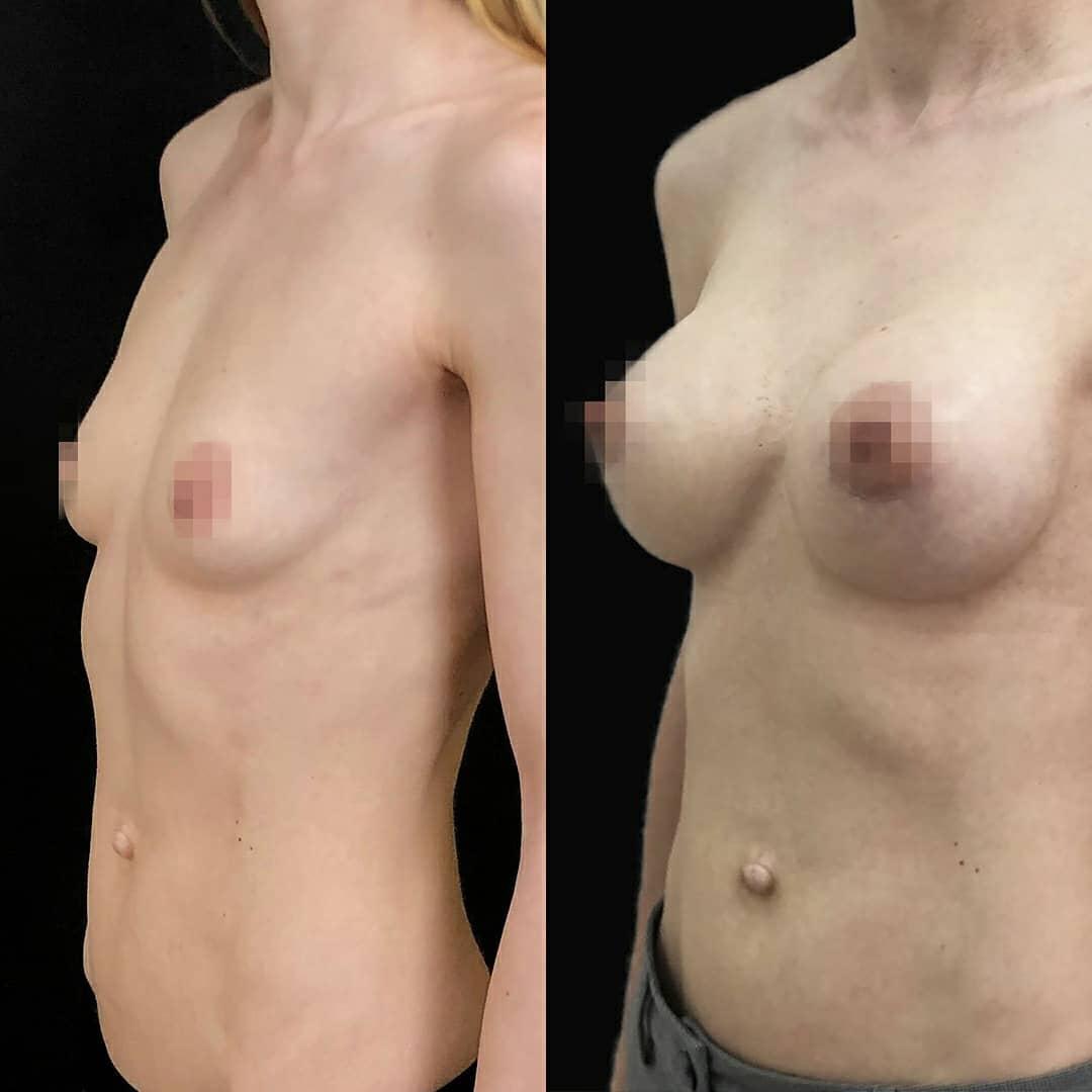 увеличение груди в клинике
