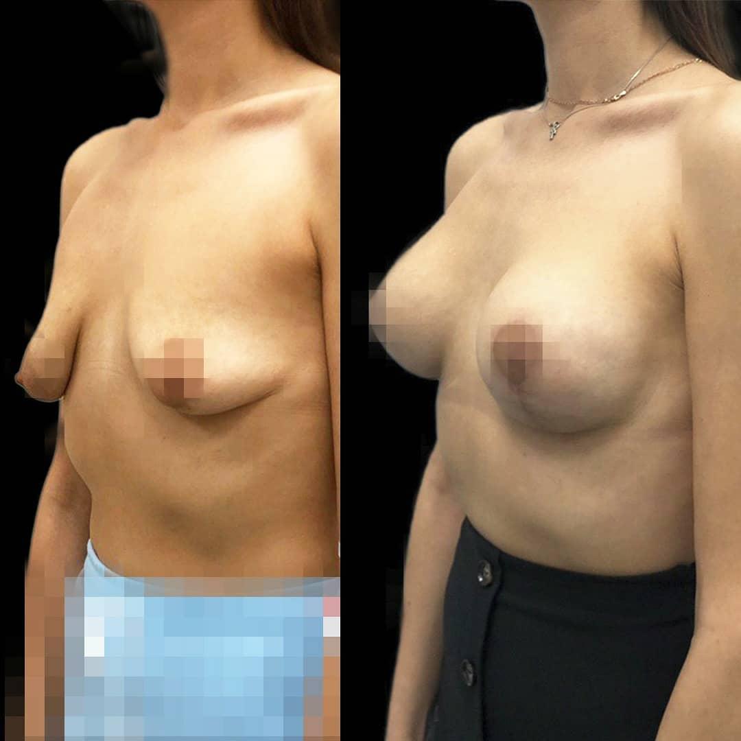 сделать увеличение груди