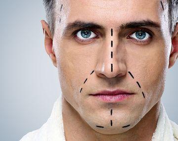 Основные особенности ринопластики у мужчин