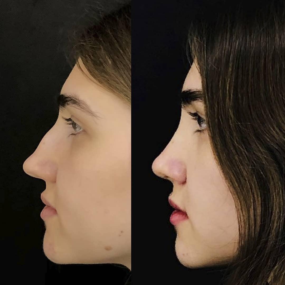закрытая пластика носа клиника