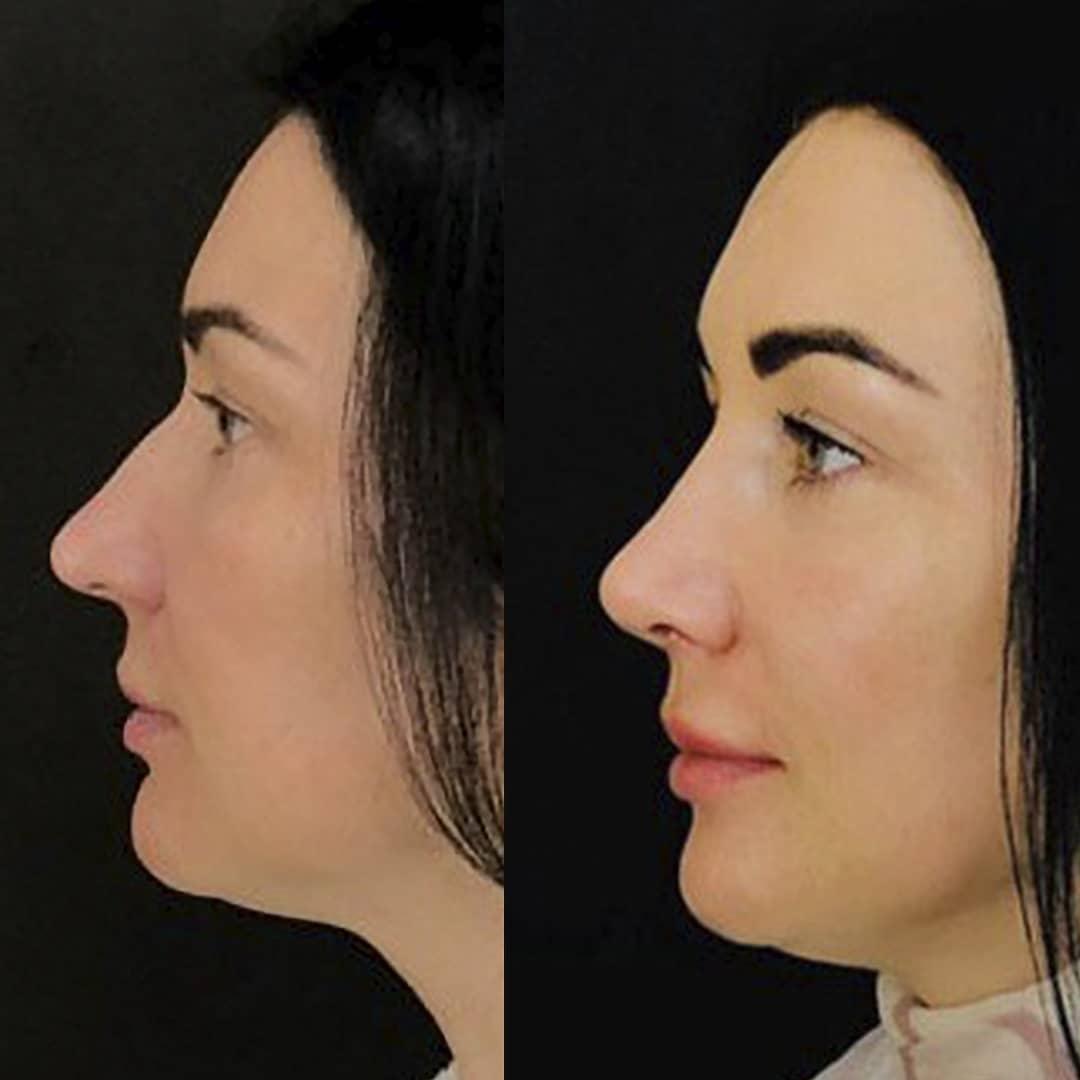 ринопластика носа закрытым способом