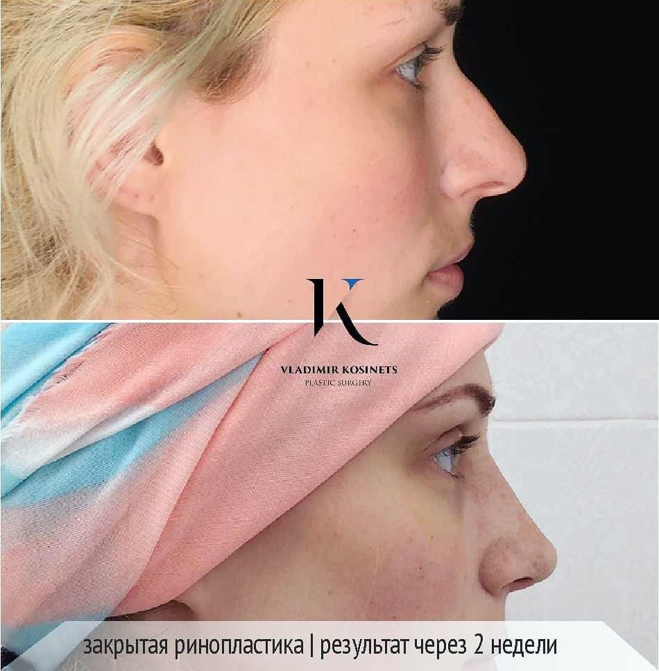 ринопластика носа закрытая