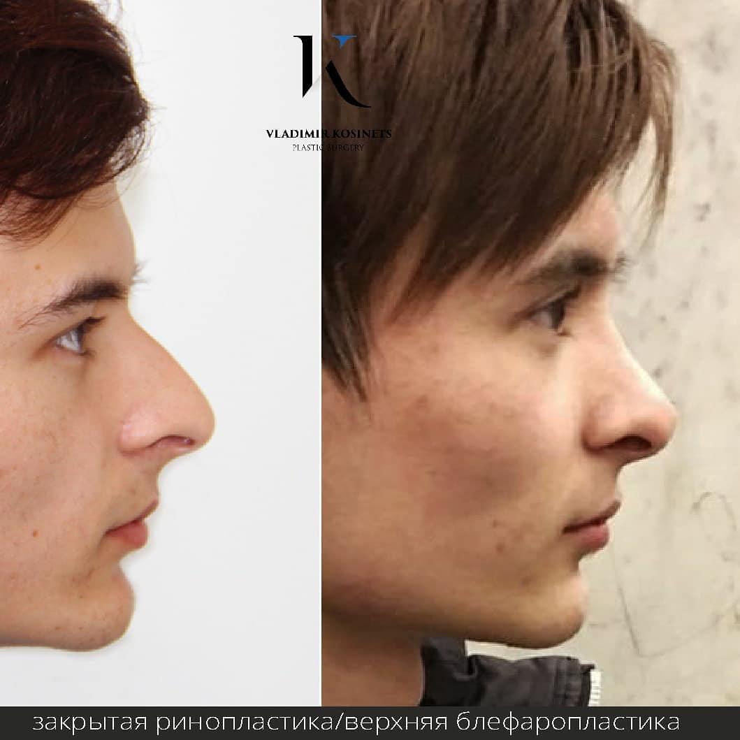 закрытая пластика носа