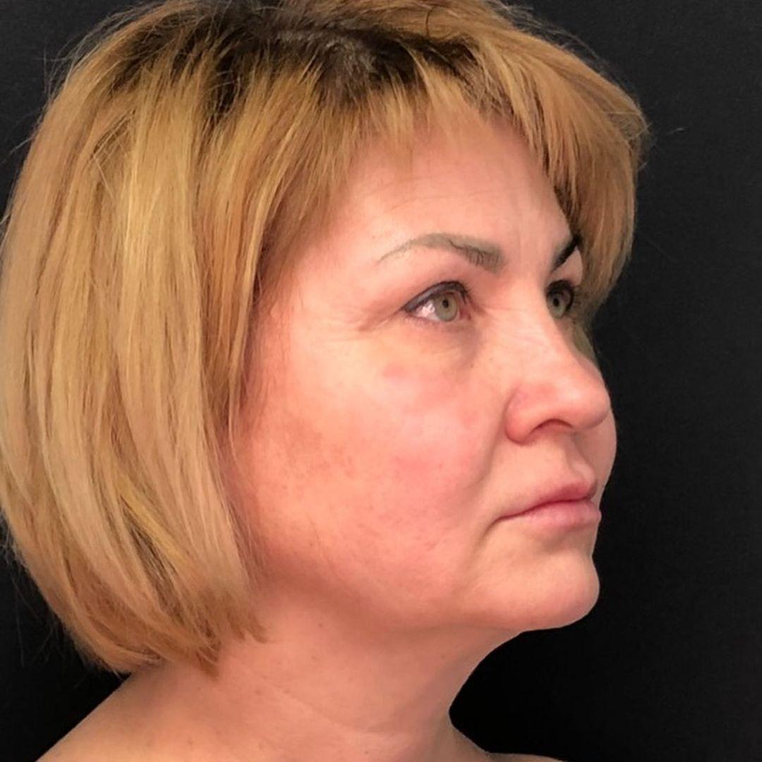 подтяжка лица в клинике