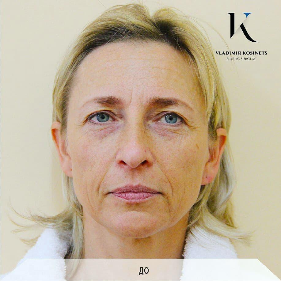 липофилинг лица фото
