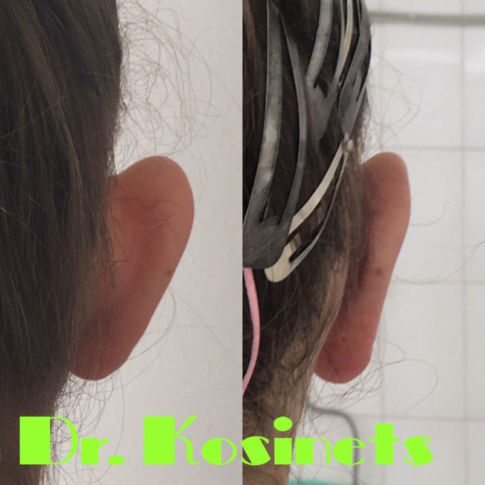 исправить оттопыренные уши