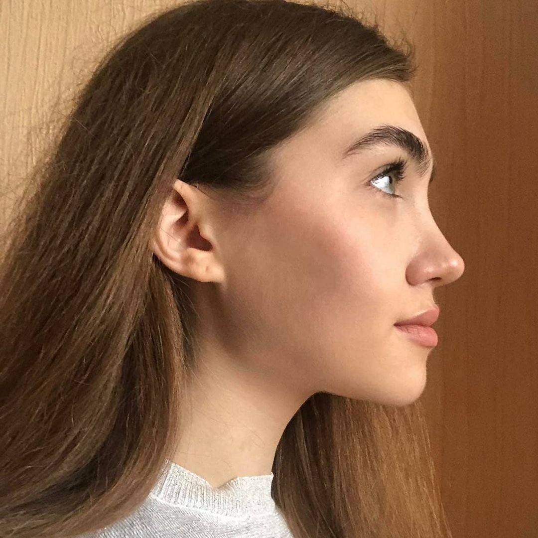 Preservation Rhinoplasty