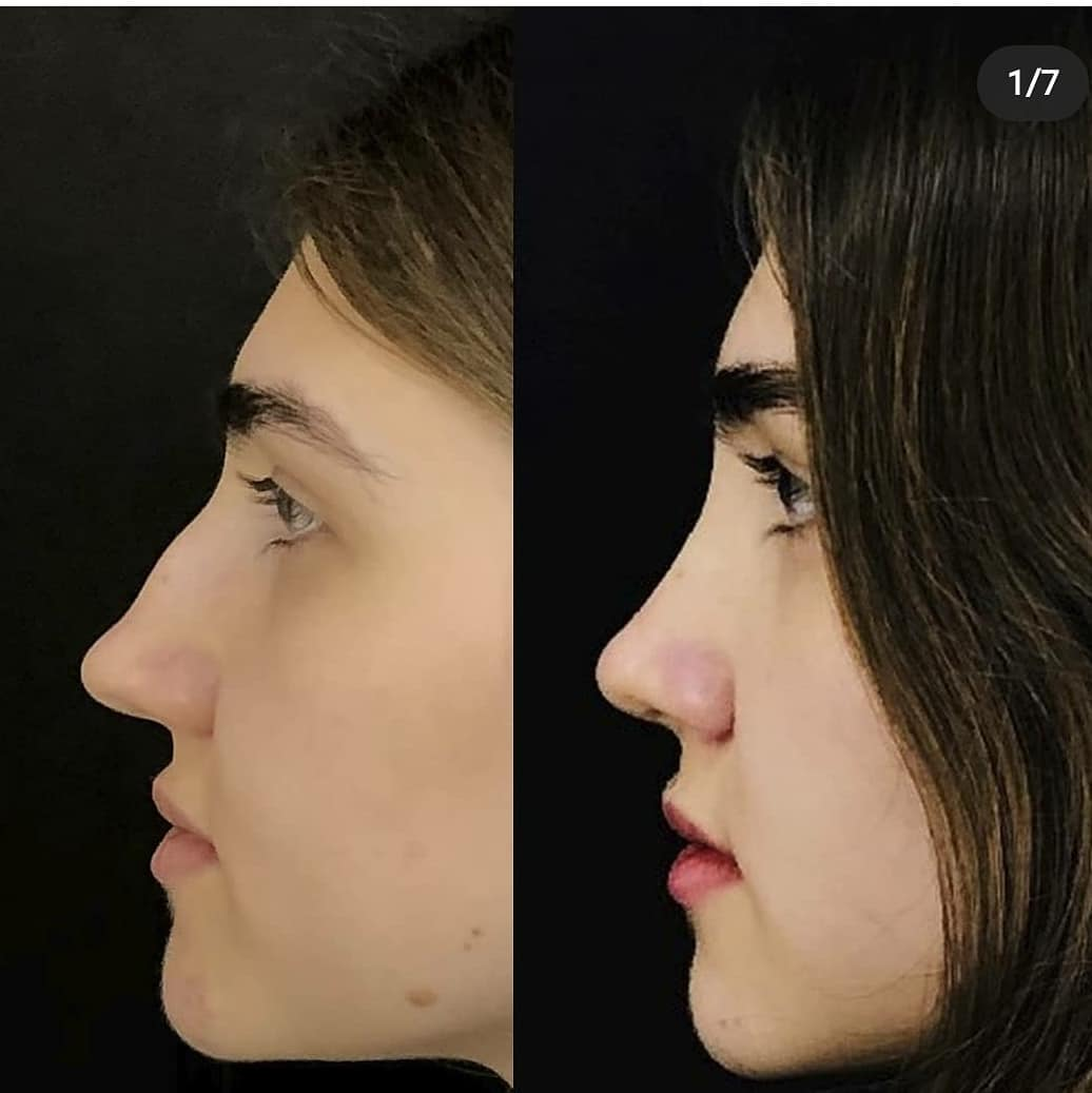 Preservation Rhinoplasty цена