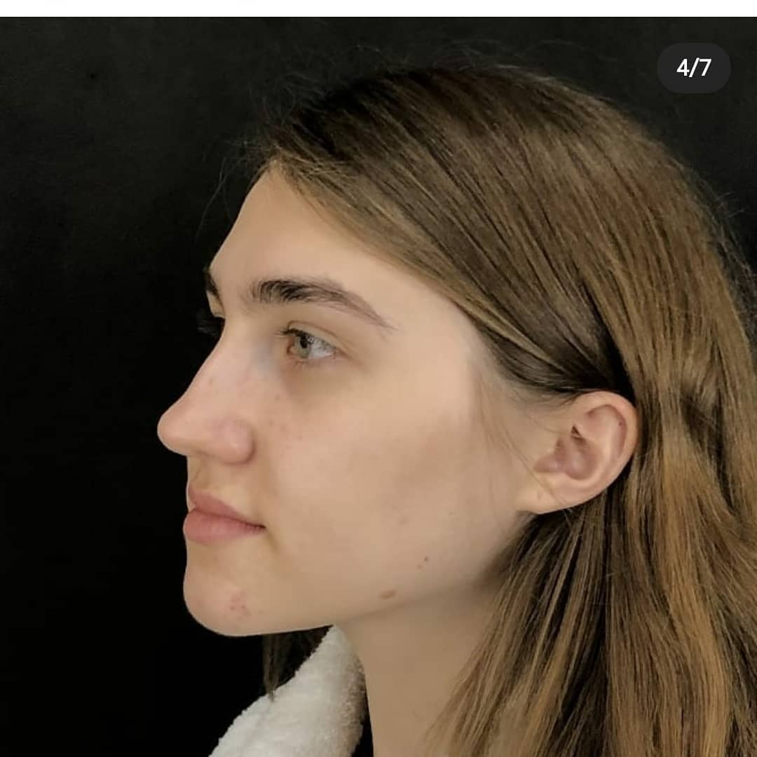 Preservation Rhinoplasty стоимость