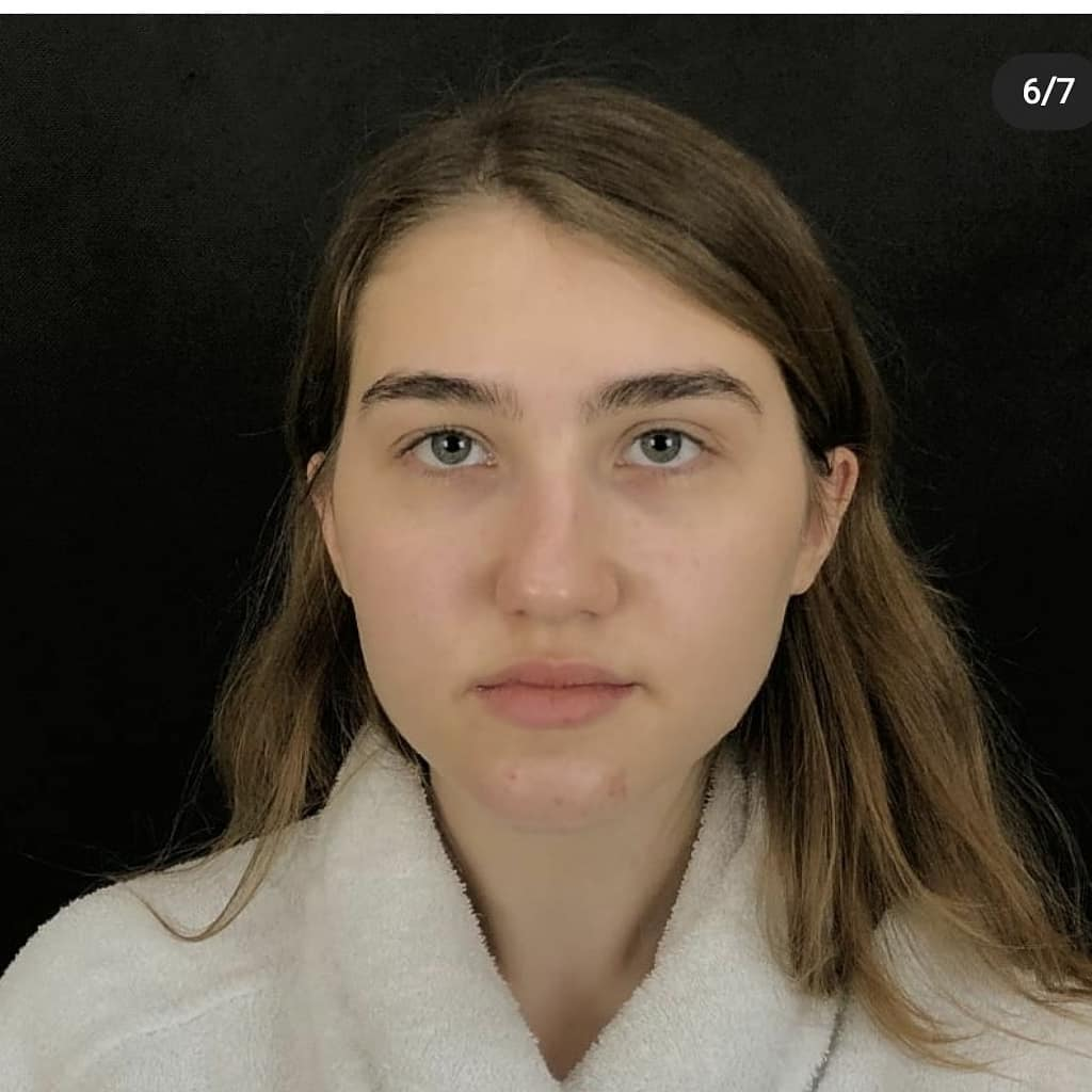 Preservation Rhinoplasty результат