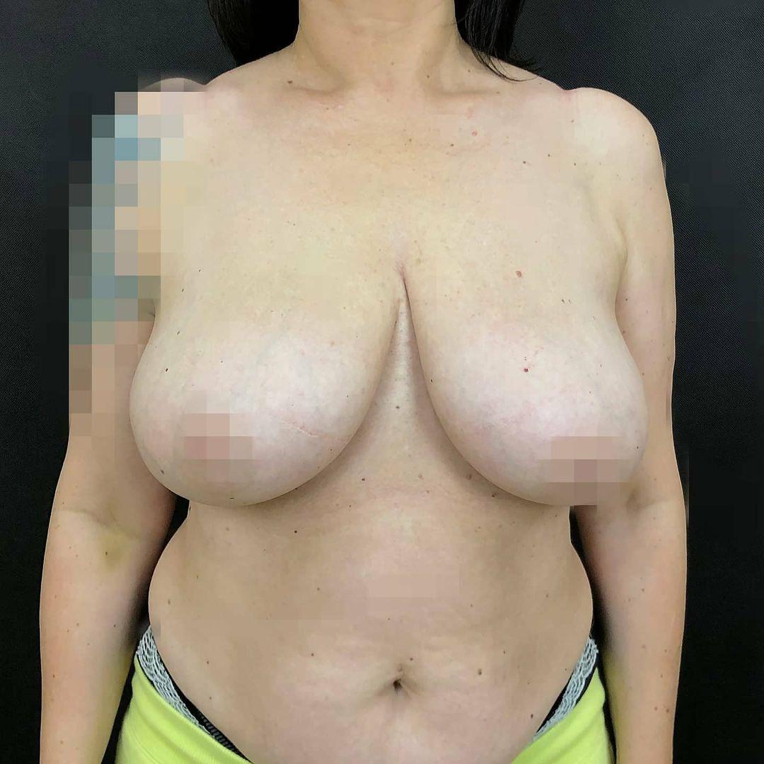 редукционная маммопластика