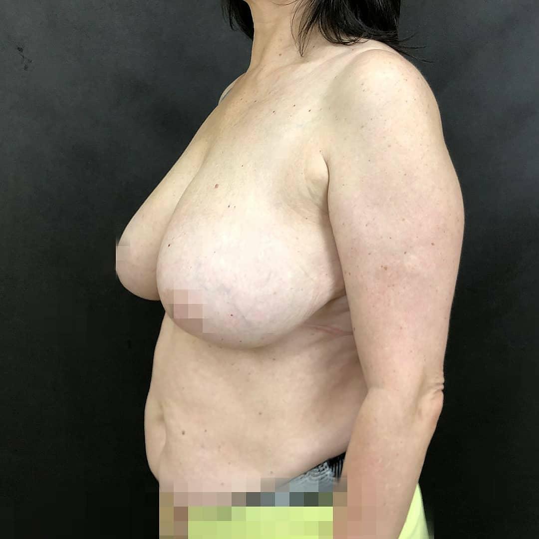 уменьшение груди в клинике