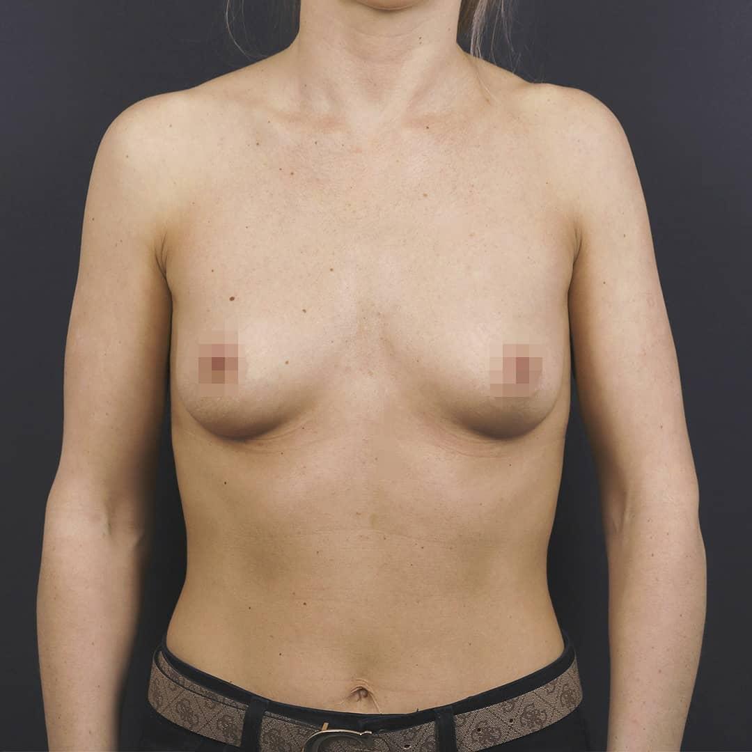 Импланты Motiva 335ml