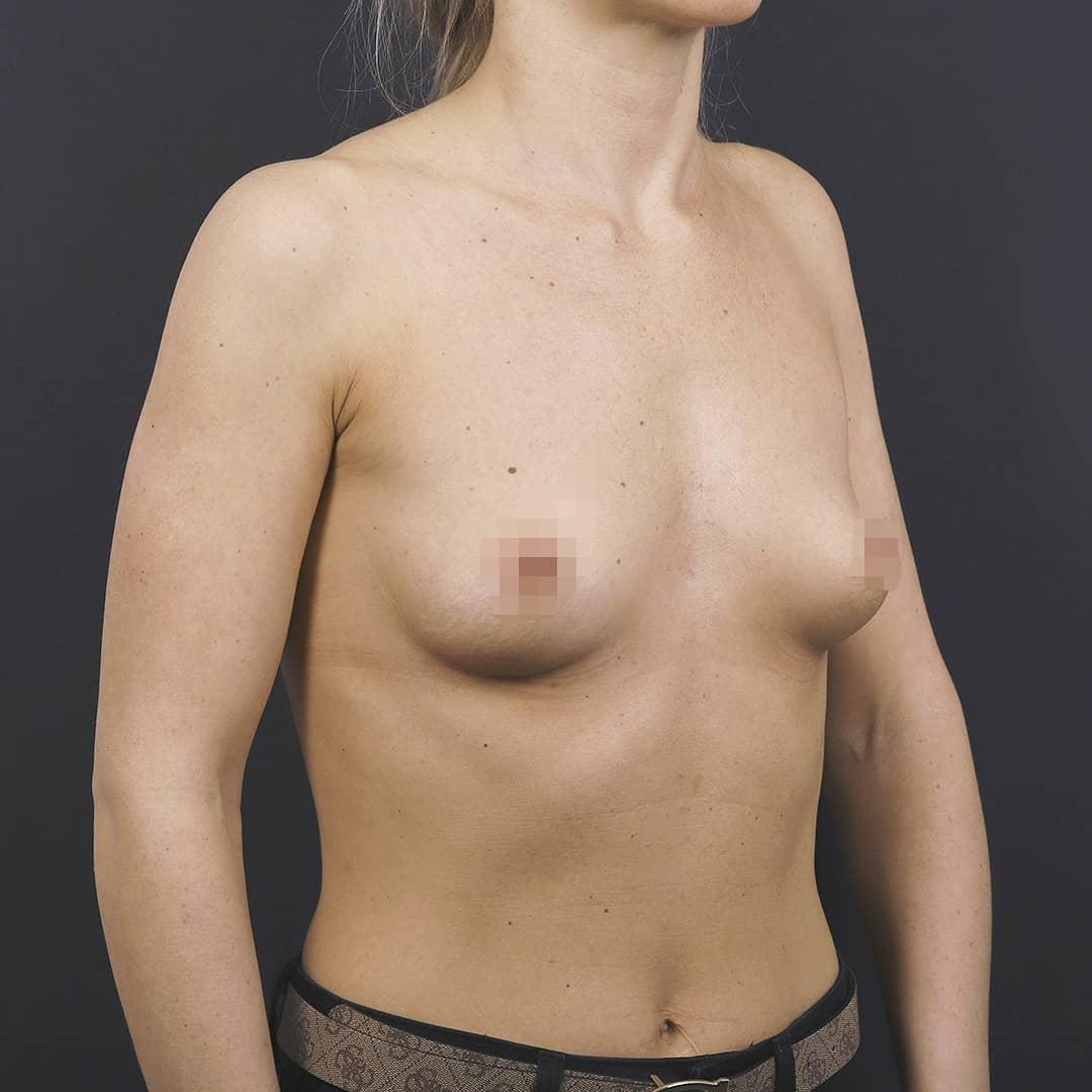 плоская грудь