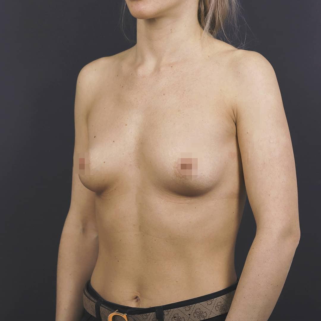 Импланты Motiva грудь