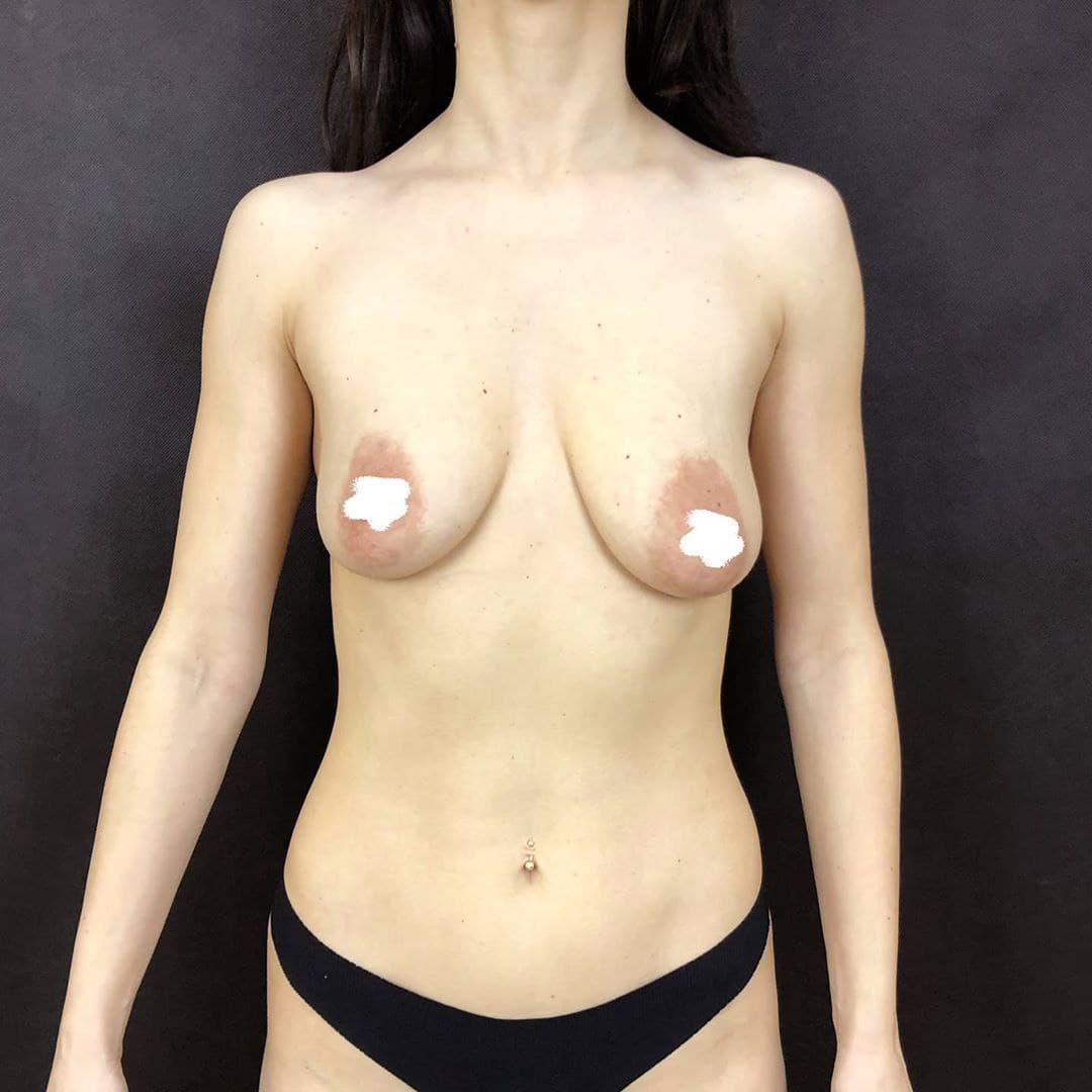 подтяжка груди после беременности