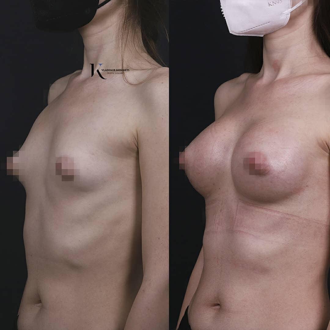 Конусообразная грудь