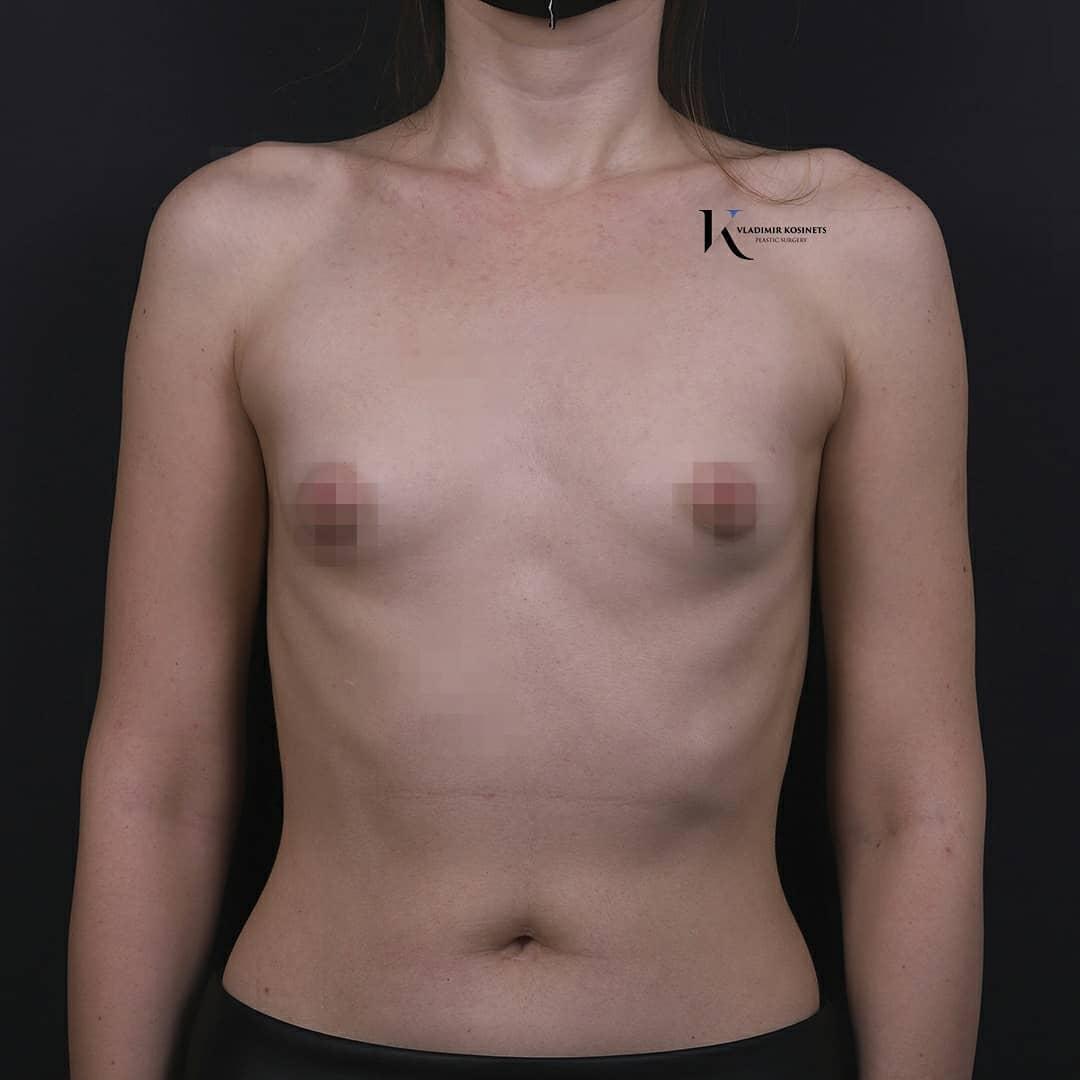 увеличение груди фотография