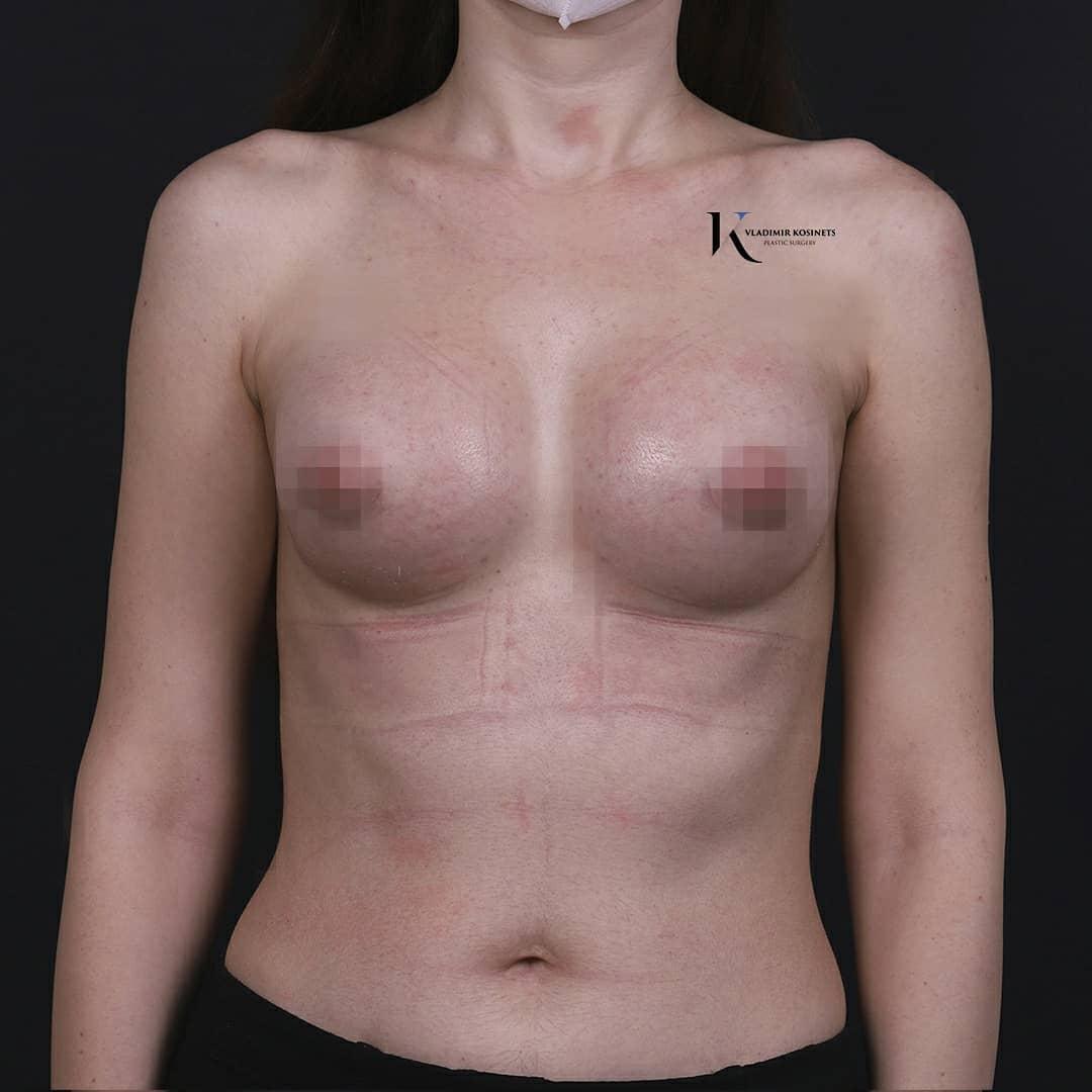 увеличение объема груди